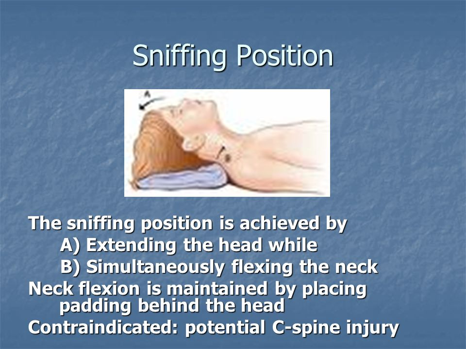 Sniffing Position The sniffing position is achieved by