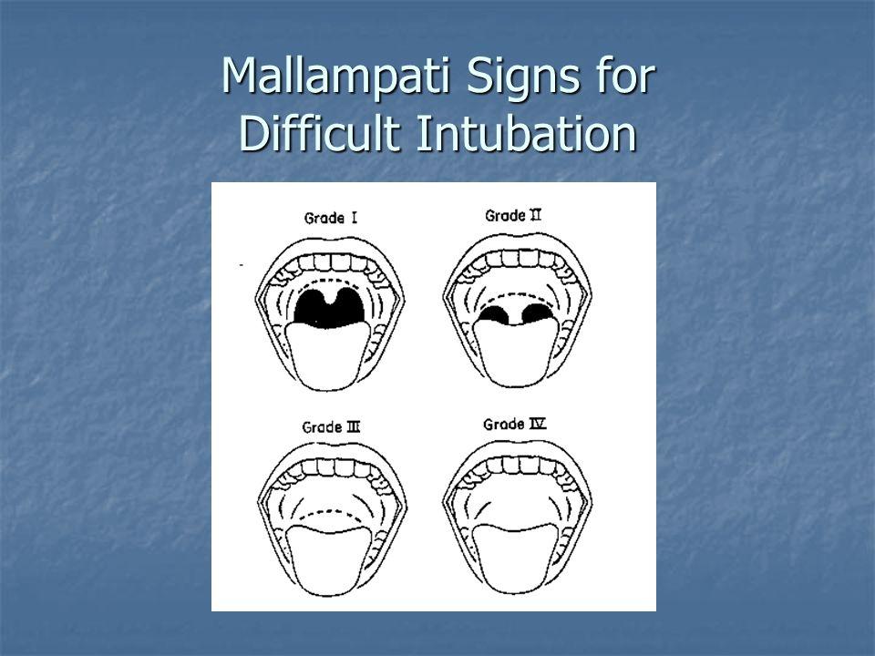 Mallampati Signs for Difficult Intubation