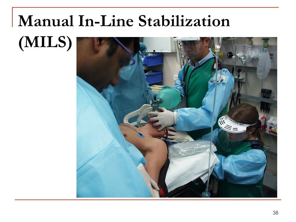 Manual In-Line Stabilization (MILS)