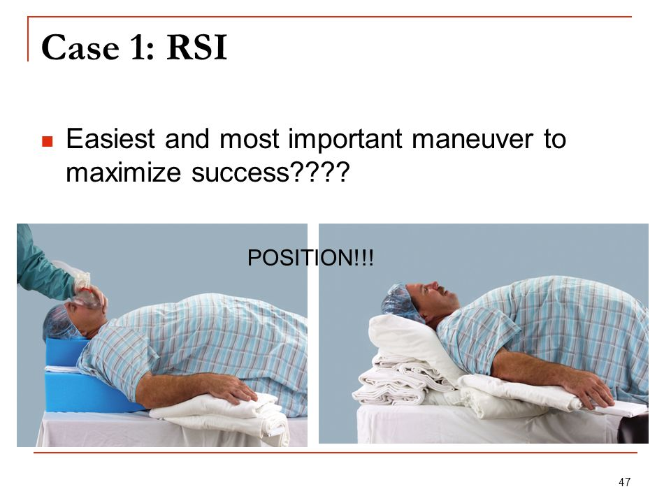 Case 1: RSI Easiest and most important maneuver to maximize success POSITION!!!