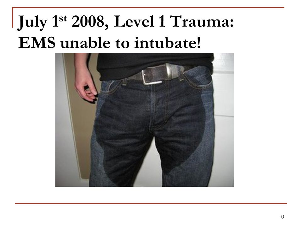 July 1st 2008, Level 1 Trauma: EMS unable to intubate!