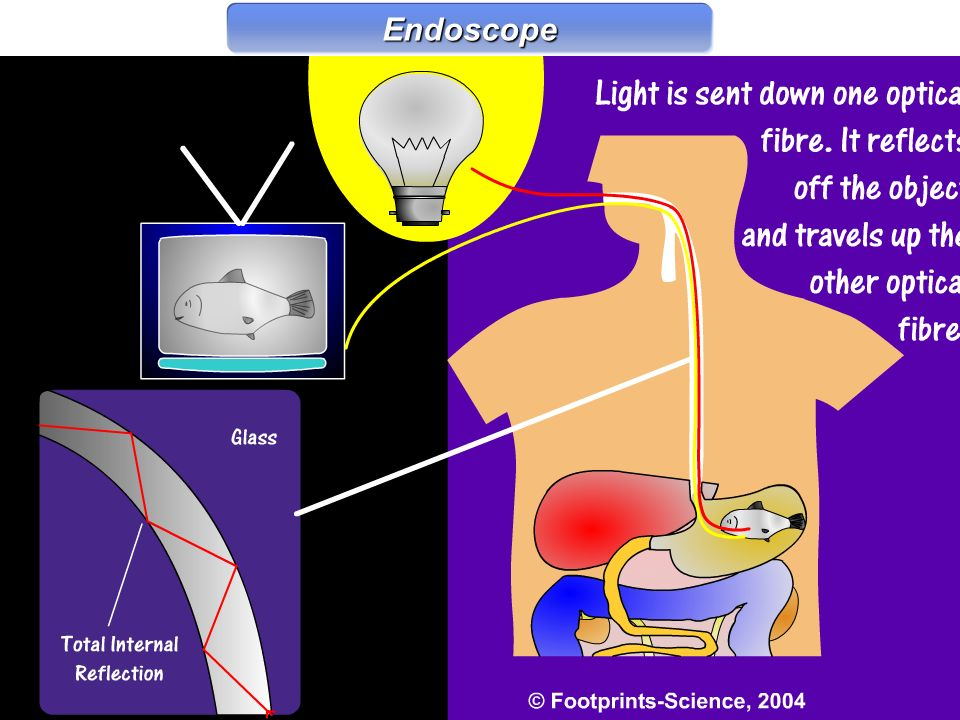 Endoscope Endoscope
