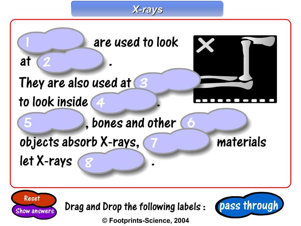 X-rays X-rays