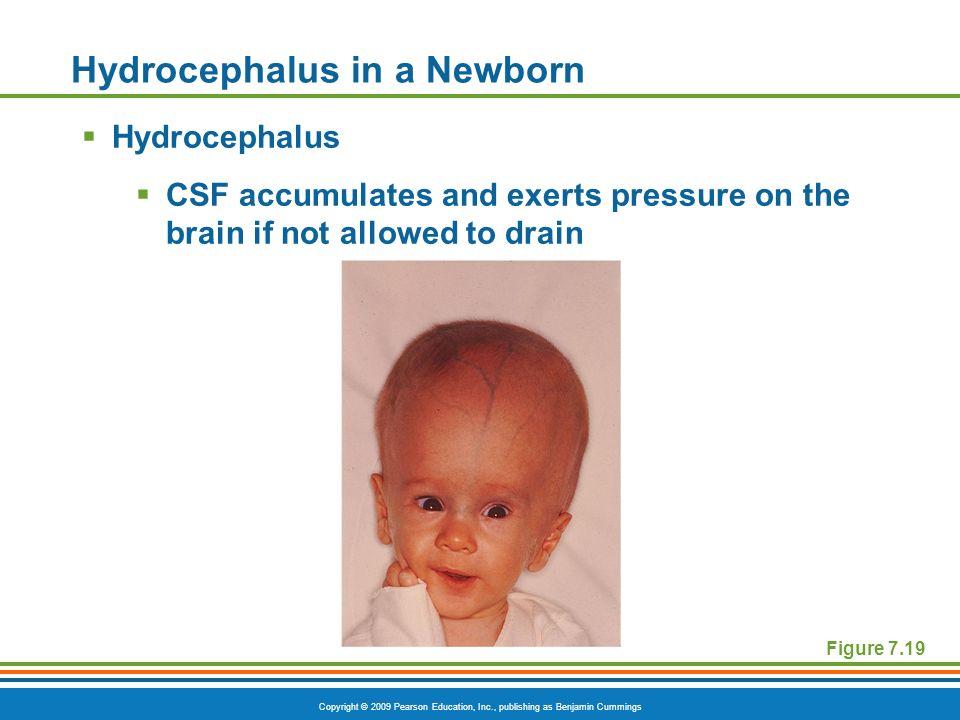 Hydrocephalus in a Newborn