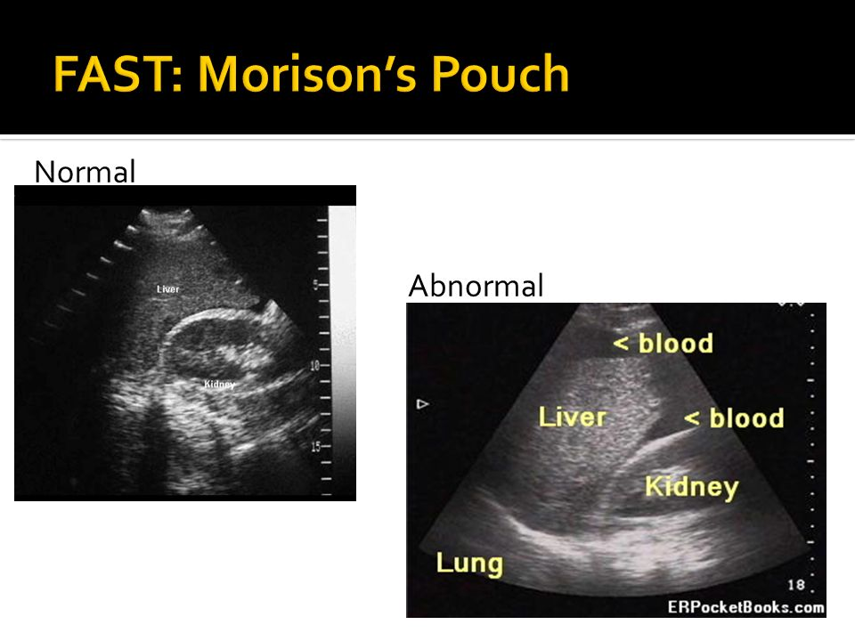 FAST: Morison's Pouch Normal Abnormal