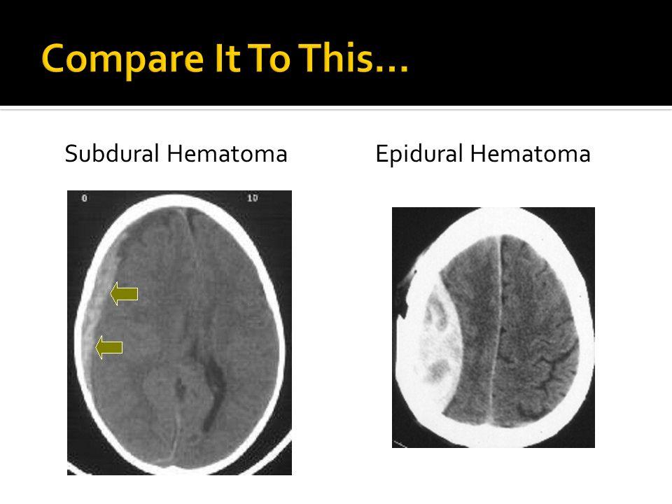 Compare It To This… Subdural Hematoma Epidural Hematoma