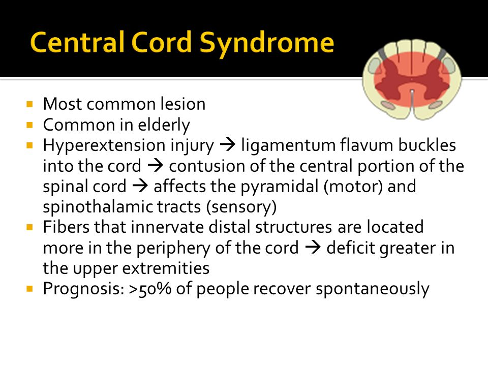 Central Cord Syndrome Most common lesion Common in elderly