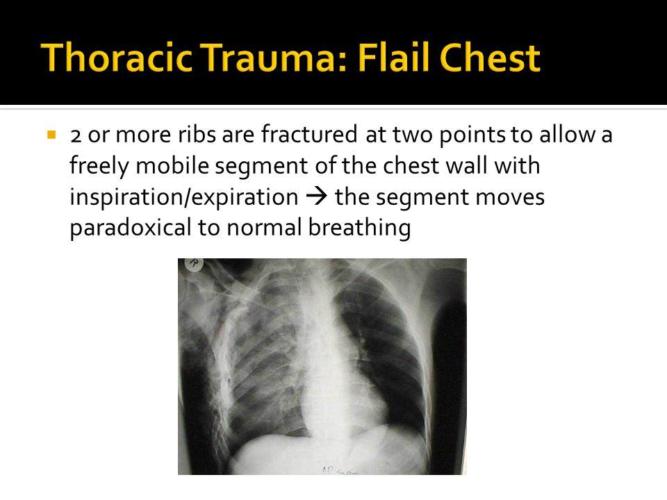 Thoracic Trauma: Flail Chest