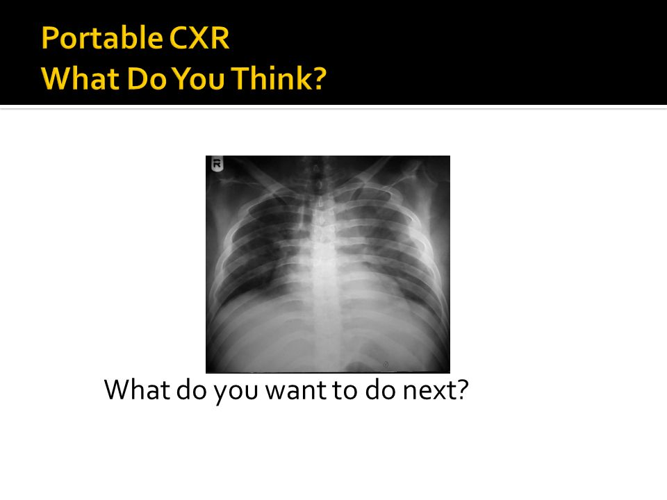 Portable CXR What Do You Think