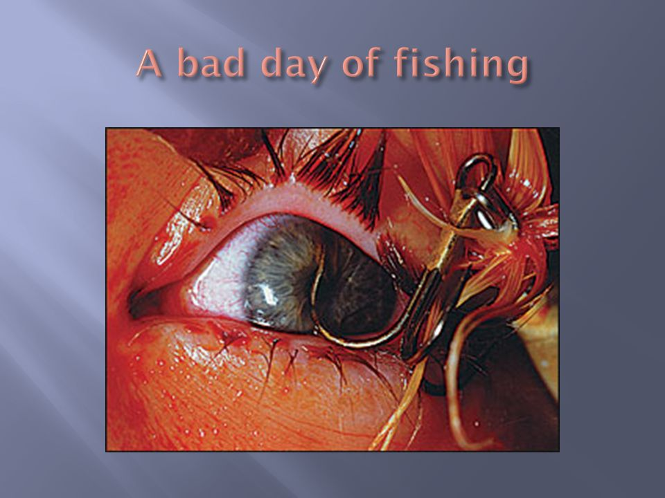 A bad day of fishing Approach IV access, vitals, r/o other injuries.