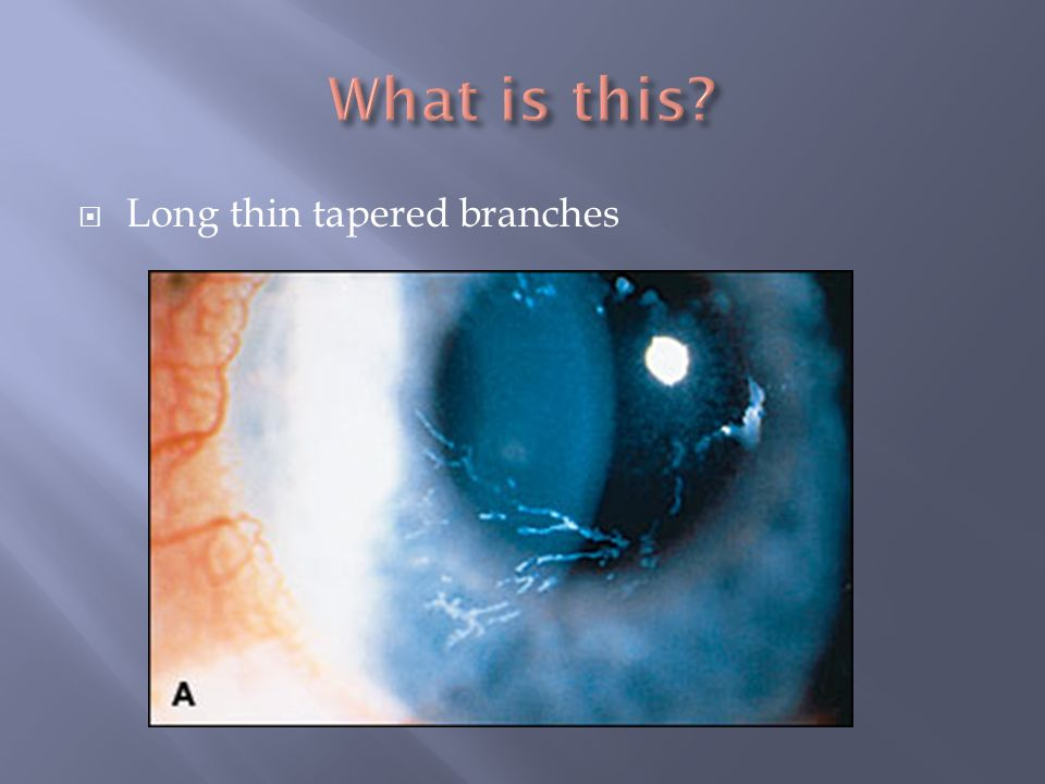 What is this Long thin tapered branches VZV epithelial keratitis