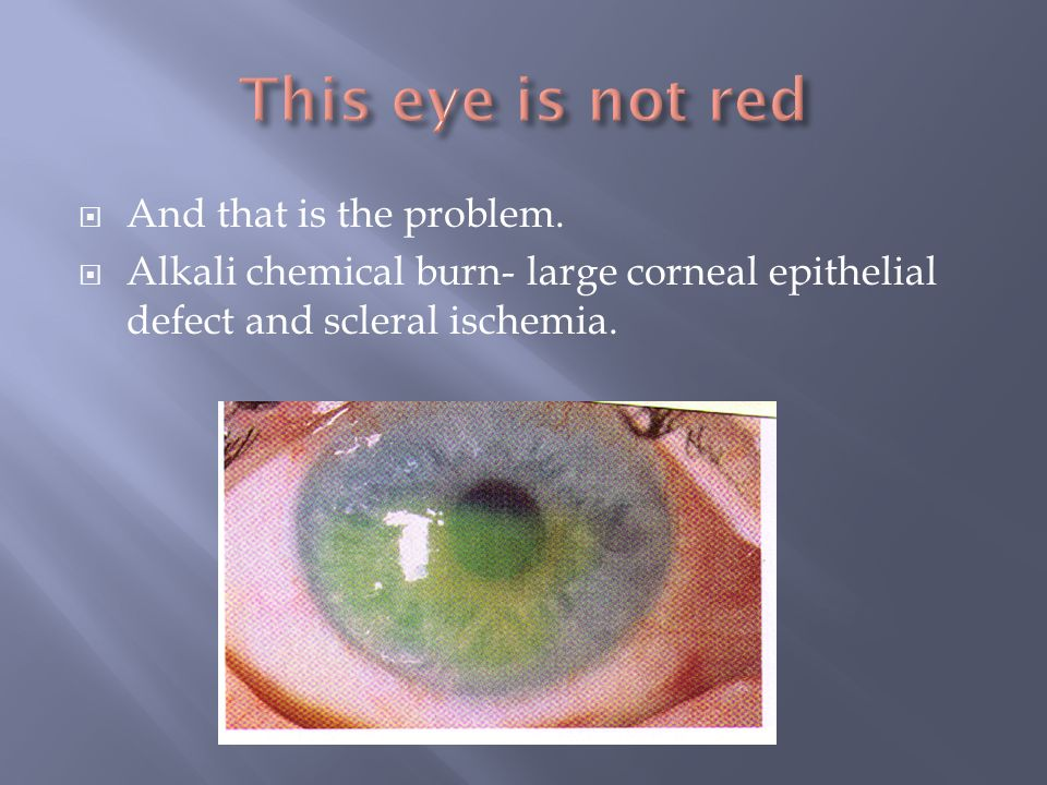 This eye is not red And that is the problem.