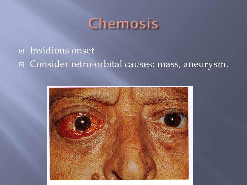 Chemosis Insidious onset