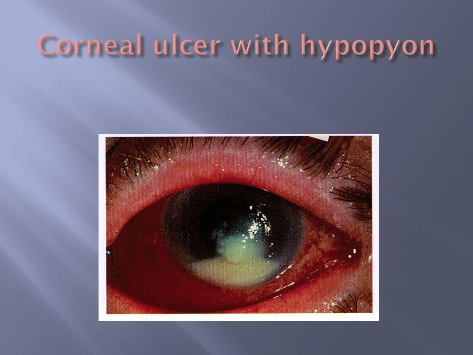 Corneal ulcer with hypopyon