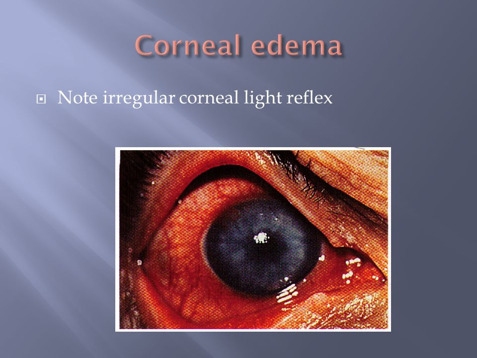 Corneal edema Note irregular corneal light reflex