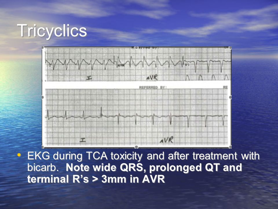 Tricyclics EKG during TCA toxicity and after treatment with bicarb.