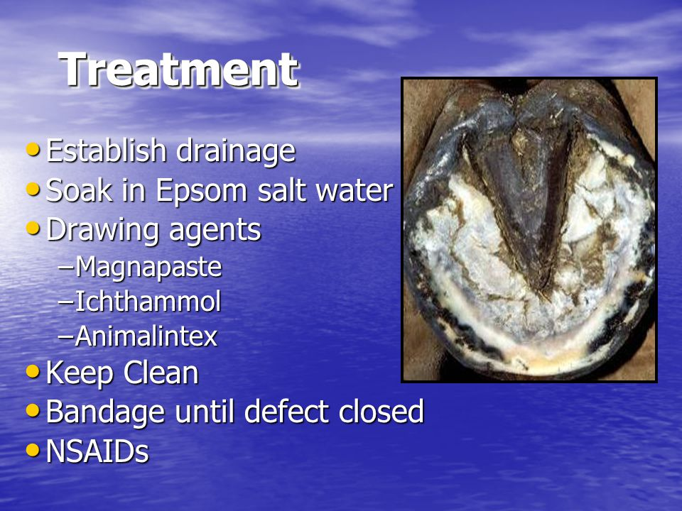 Treatment Establish drainage Soak in Epsom salt water Drawing agents