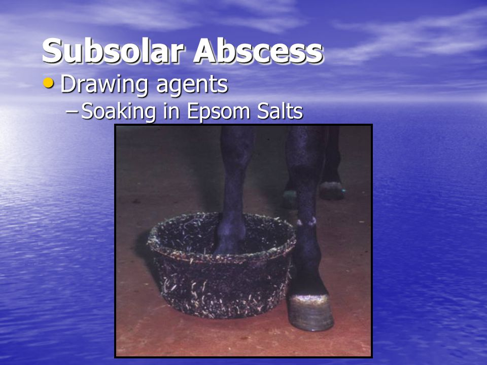 Subsolar Abscess Drawing agents Soaking in Epsom Salts