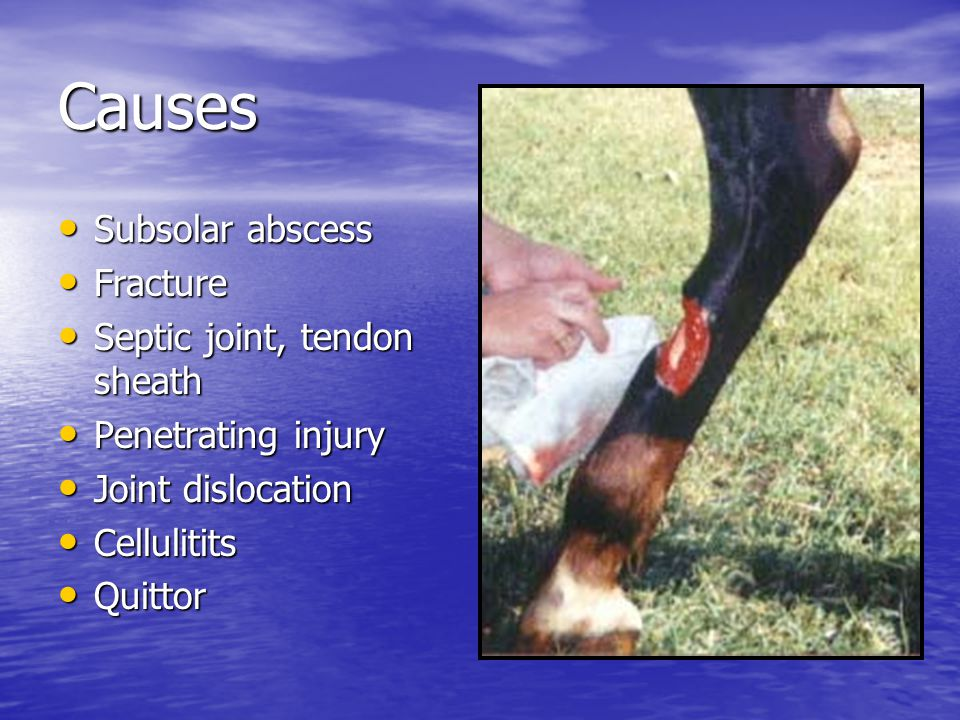 Causes Subsolar abscess Fracture Septic joint, tendon sheath