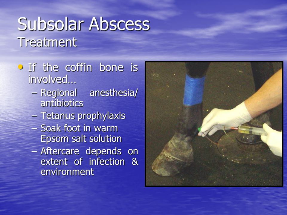 Subsolar Abscess Treatment