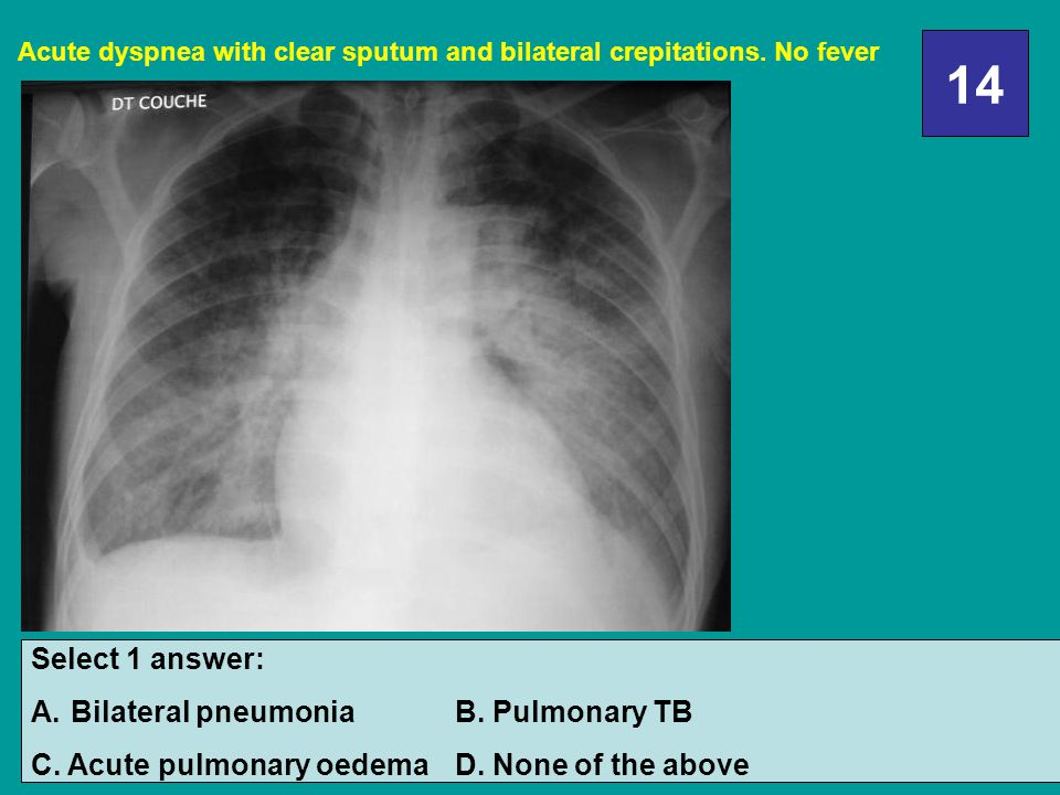 14 Select 1 answer: Bilateral pneumonia B. Pulmonary TB