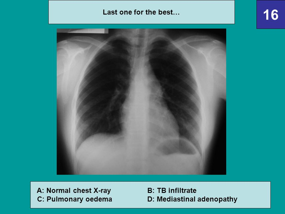 16 Last one for the best… A: Normal chest X-ray B: TB infiltrate