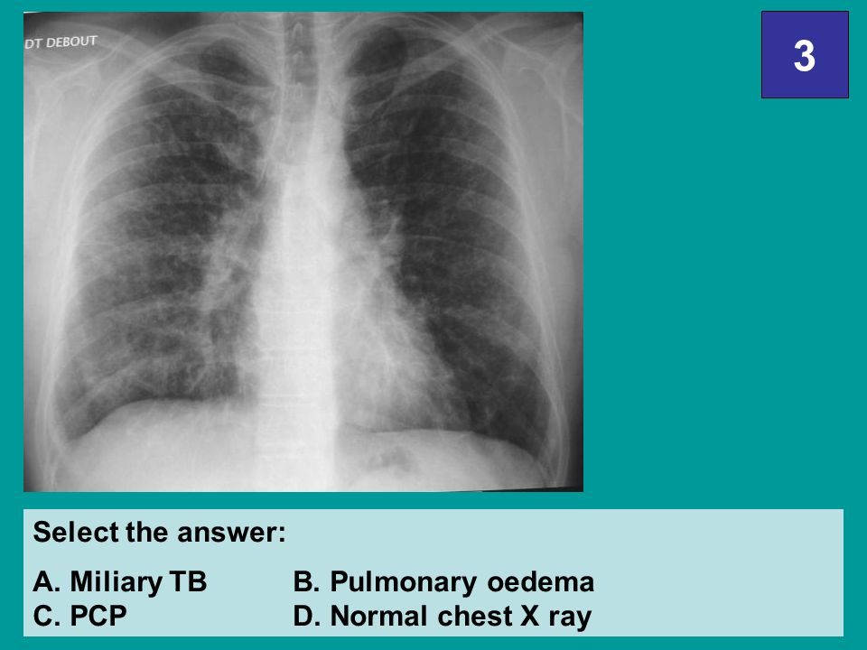 3 Select the answer: A. Miliary TB B. Pulmonary oedema