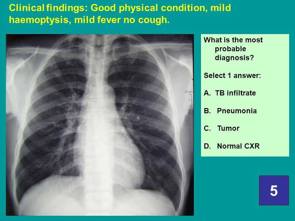 Clinical findings: Good physical condition, mild haemoptysis, mild fever no cough.