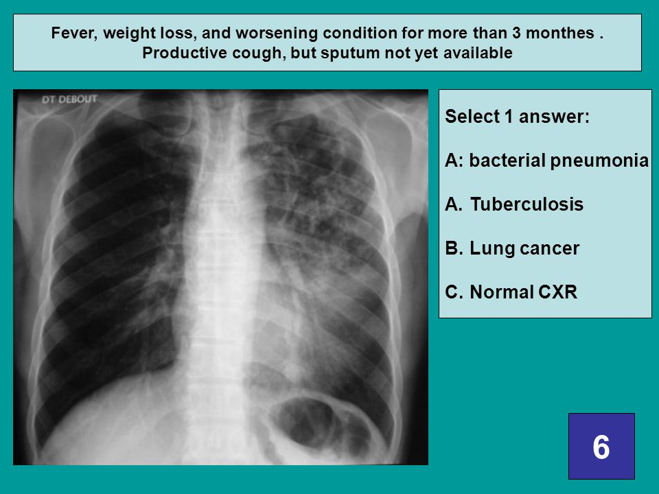 6 Select 1 answer: A: bacterial pneumonia Tuberculosis Lung cancer