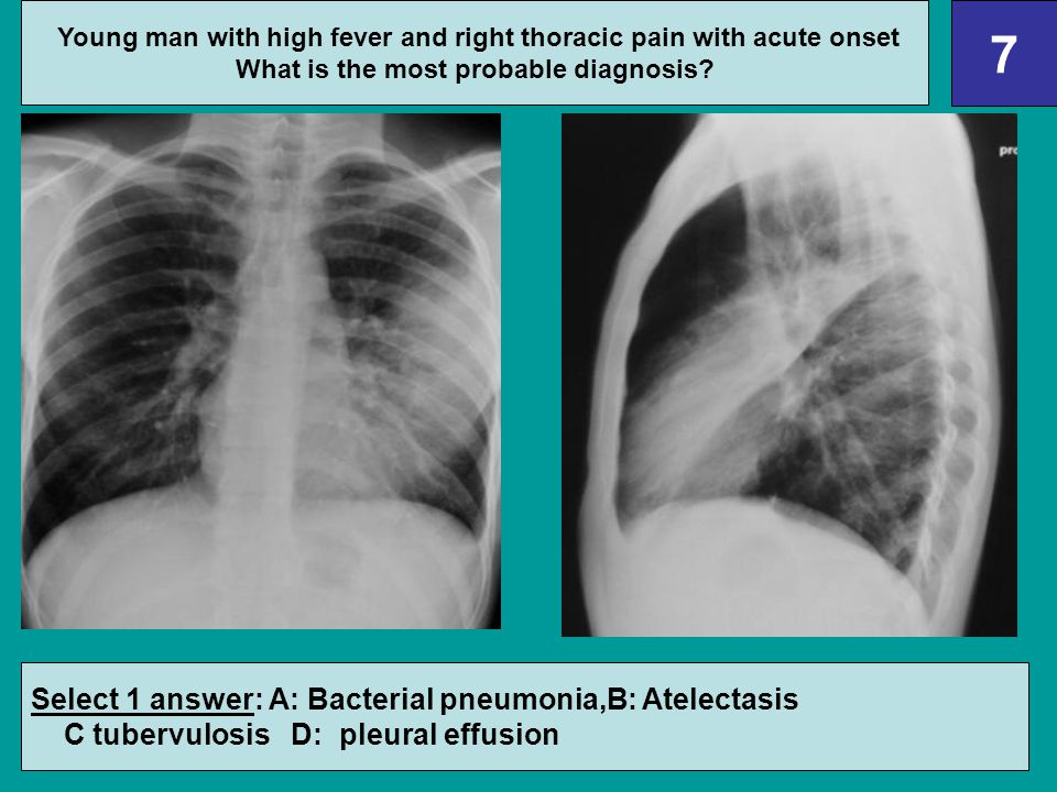 7 Select 1 answer: A: Bacterial pneumonia,B: Atelectasis