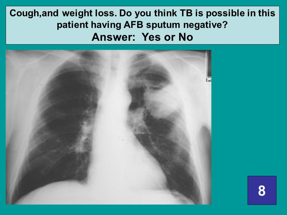 Cough,and weight loss. Do you think TB is possible in this patient having AFB sputum negative