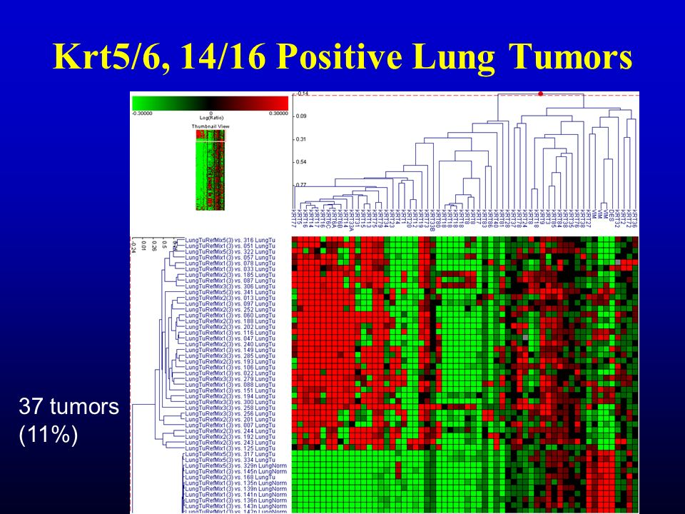 Krt5/6, 14/16 Positive Lung Tumors