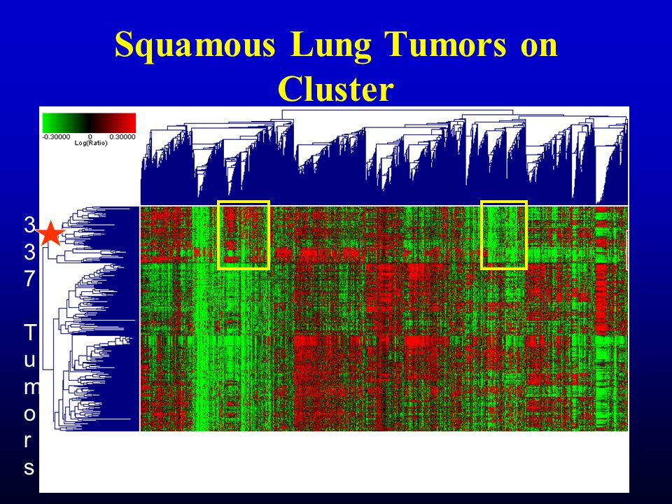 Squamous Lung Tumors on Cluster