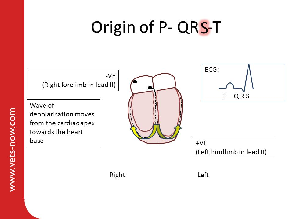 Origin of P- QR -T S ECG: -VE (Right forelimb in lead II) P Q R S