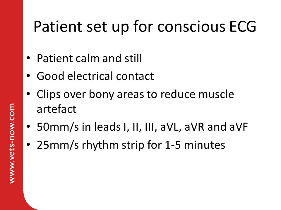 Patient set up for conscious ECG