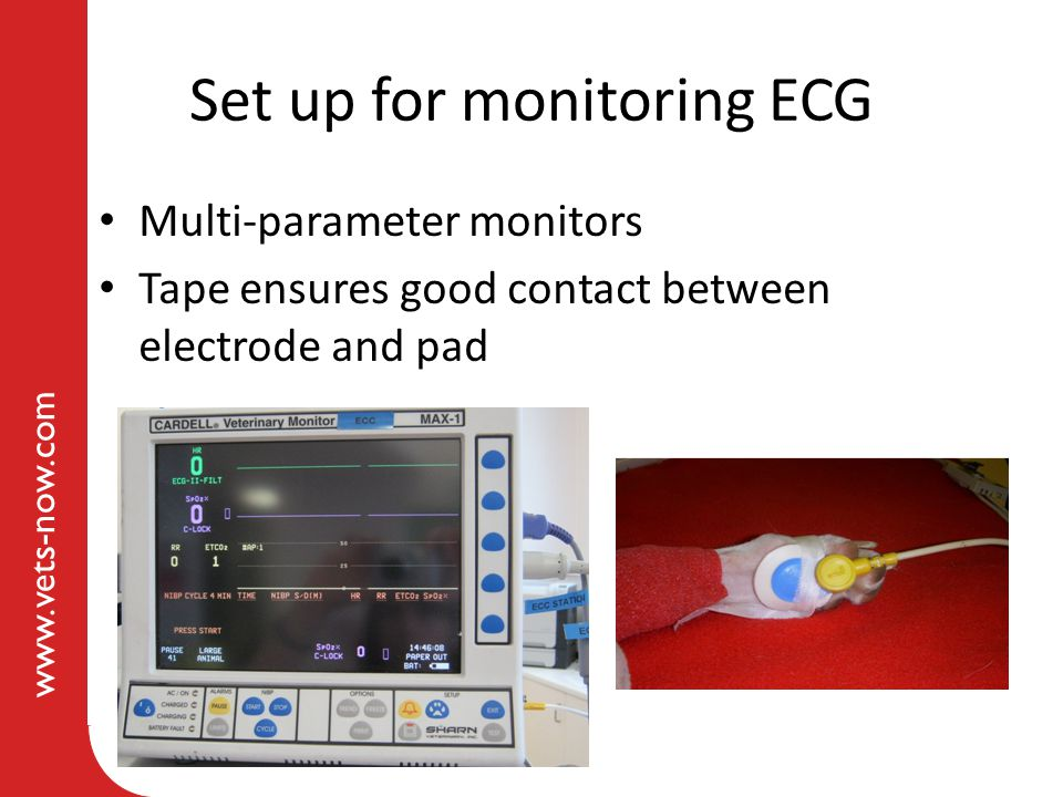 Set up for monitoring ECG