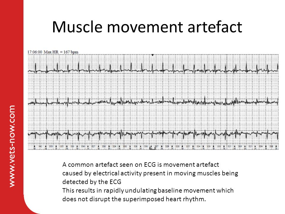 Muscle movement artefact