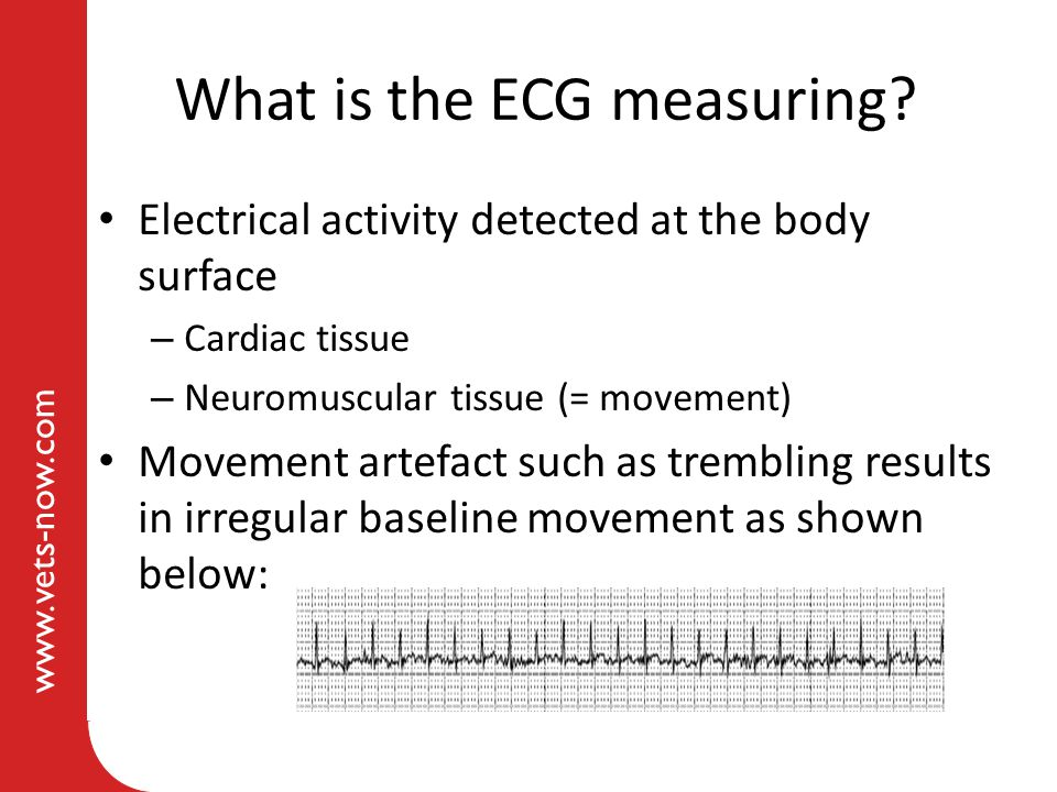 What is the ECG measuring