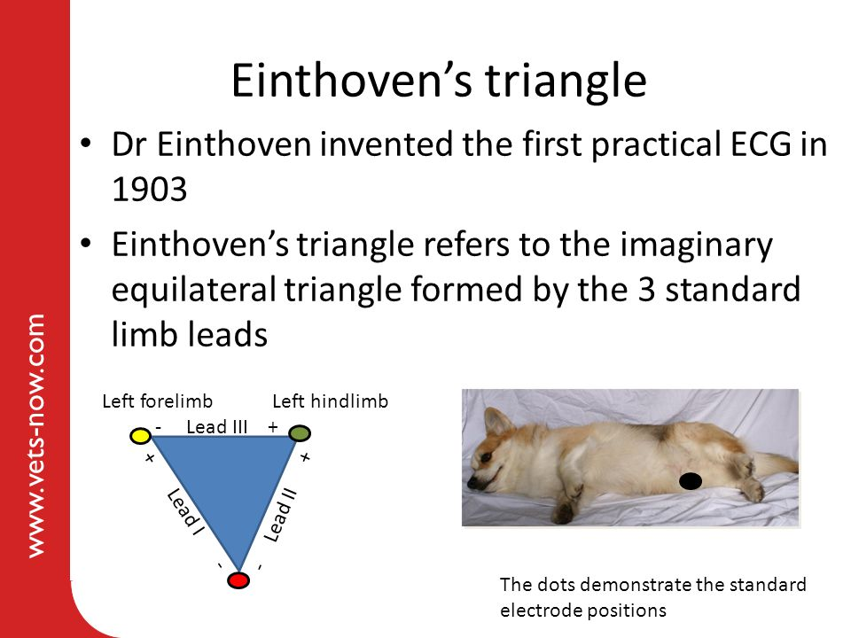 Einthoven's triangle Dr Einthoven invented the first practical ECG in 1903.