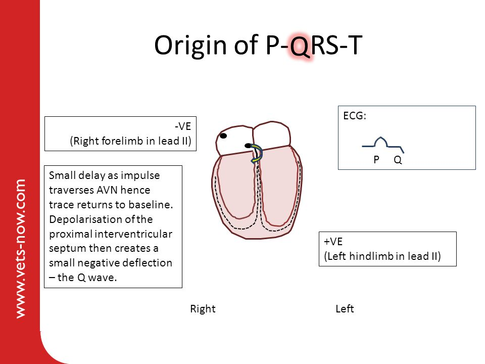 Origin of P- RS-T Q ECG: -VE (Right forelimb in lead II) P Q