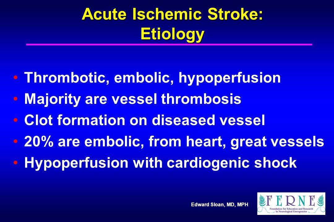 Acute Ischemic Stroke: Etiology