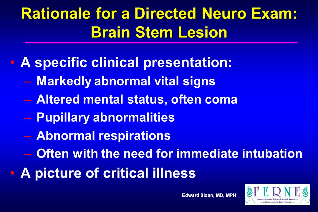 Rationale for a Directed Neuro Exam: Brain Stem Lesion