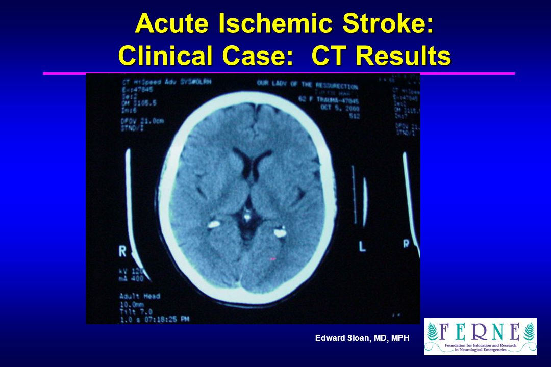 Acute Ischemic Stroke: Clinical Case: CT Results