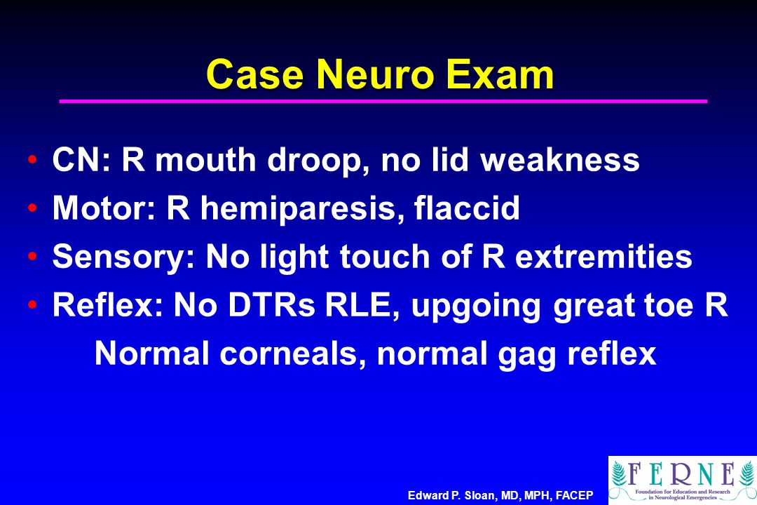 Case Neuro Exam CN: R mouth droop, no lid weakness