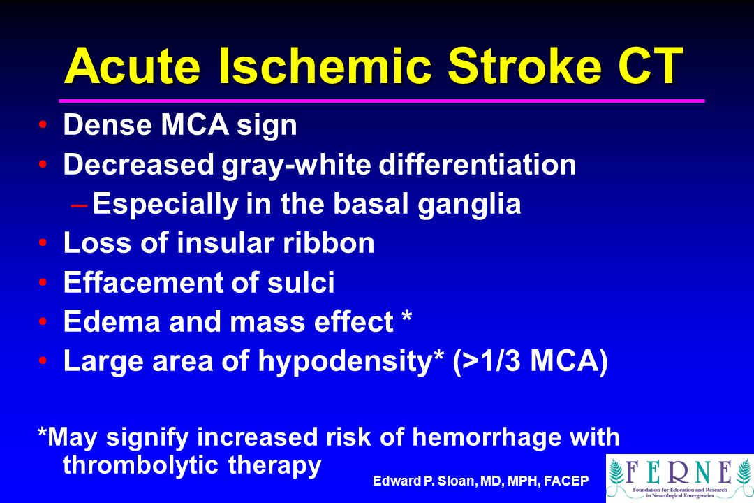 Acute Ischemic Stroke CT
