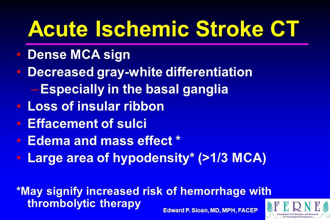 Acute Ischemic Stroke CT