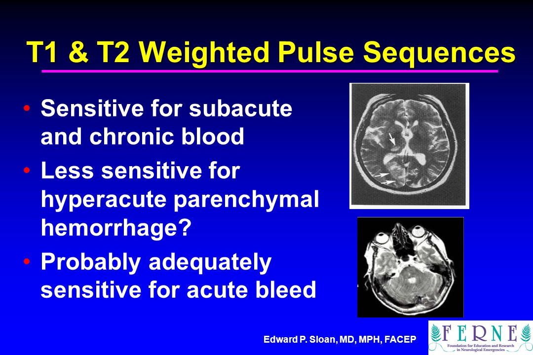 T1 & T2 Weighted Pulse Sequences