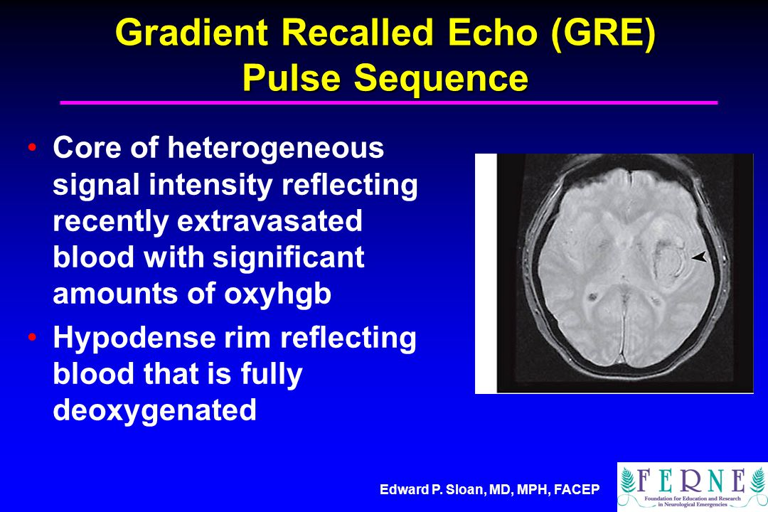Gradient Recalled Echo (GRE) Pulse Sequence