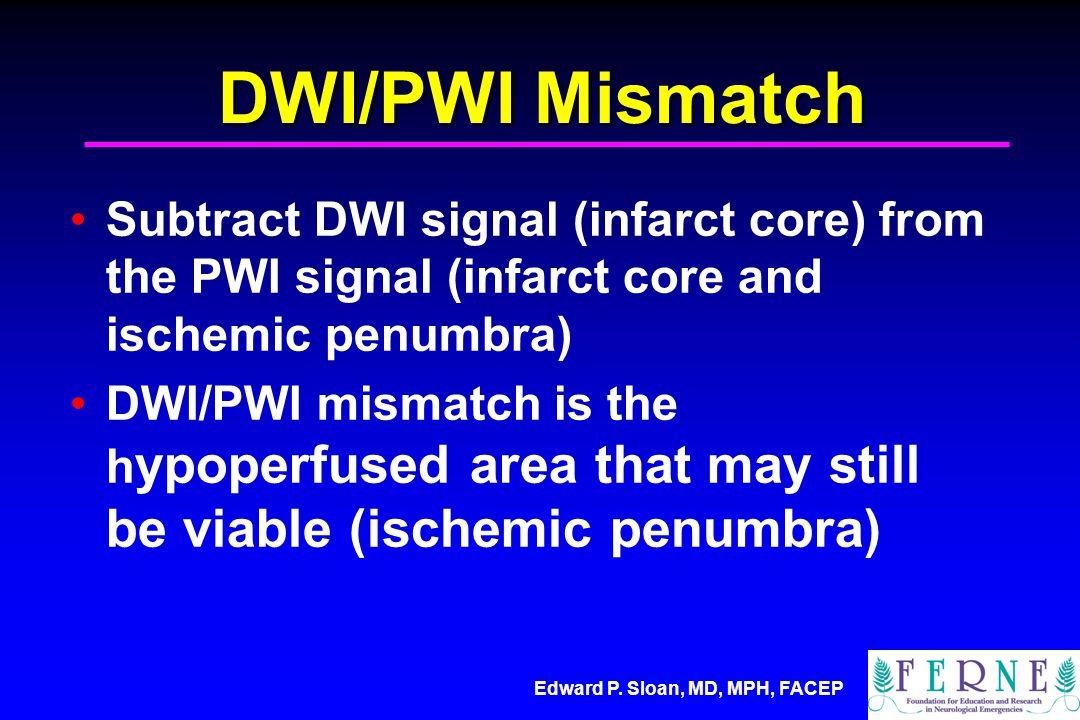 DWI/PWI Mismatch Subtract DWI signal (infarct core) from the PWI signal (infarct core and ischemic penumbra)