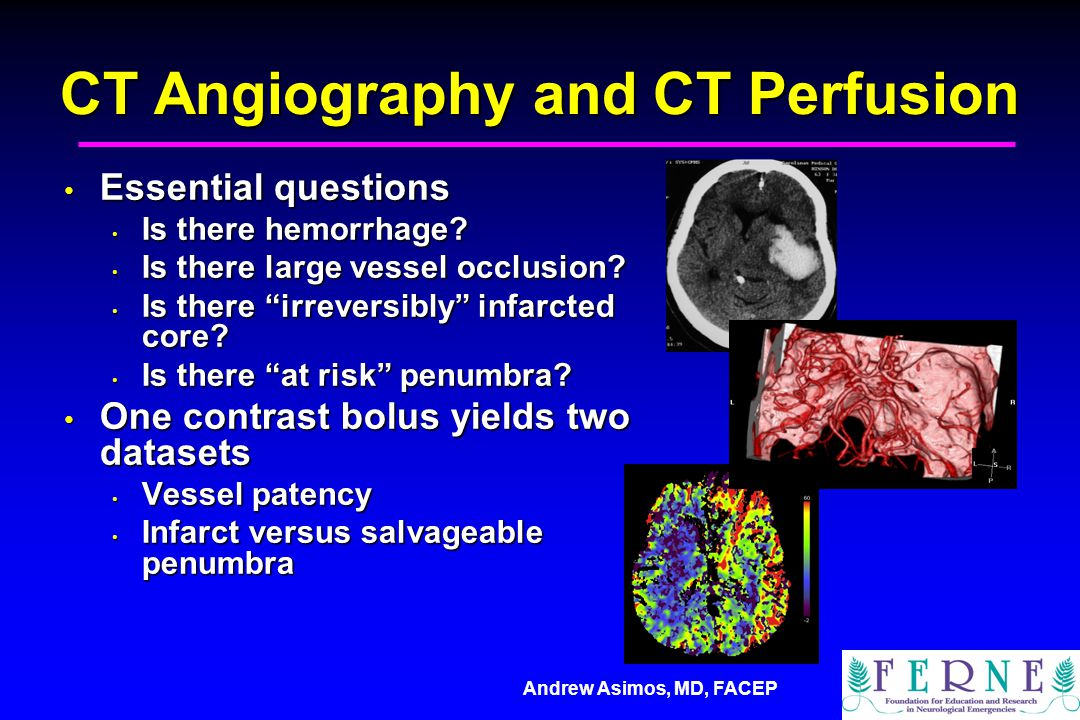 CT Angiography and CT Perfusion